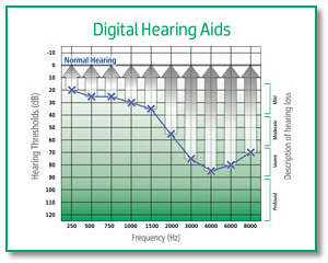 Digital-Hearing-Aids-2