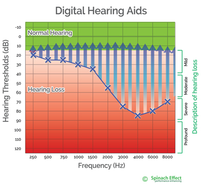 Modern digital hearing aids separately amplify up to 64 frequency bands , to restore the wearers hearing to normal hearing levels.